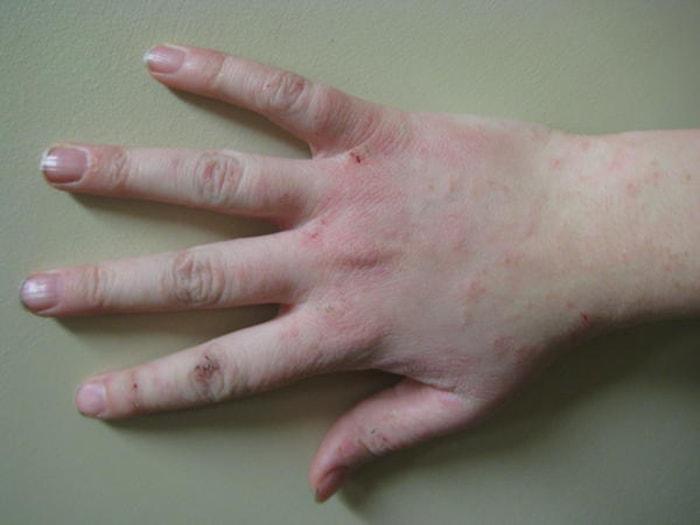 Nhận biết những dấu hiệu sớm của bệnh gan qua da