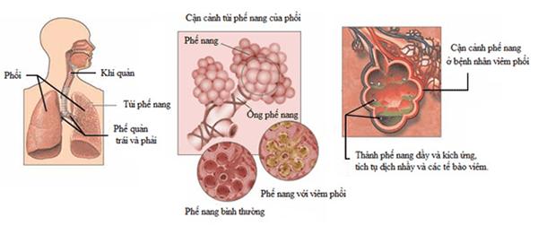 Tác dụng chữa bệnh ung thư phổi của cây Bán chi liên