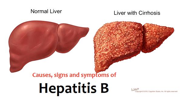 Bệnh viêm gan siêu vi B lây qua đường nào?