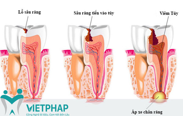 Bọc răng sứ có cần phải lấy tủy không?