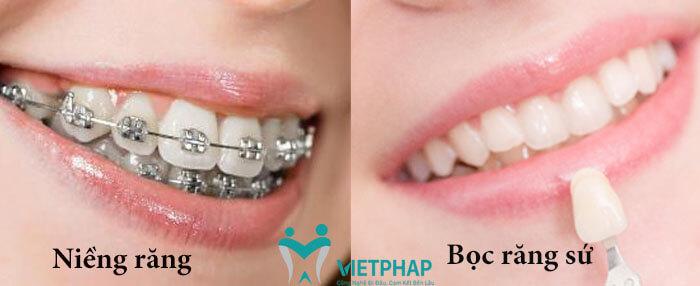 Nên bọc răng sứ hay niềng răng cho răng bị hô