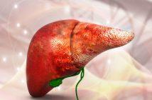 Nguyên nhân và cách điều trị bệnh gan nhiễm mỡ