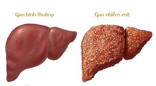 các cấp độ của gan nhiễm mỡ 2