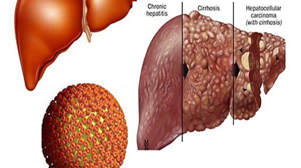 các cấp độ của gan nhiễm mỡ