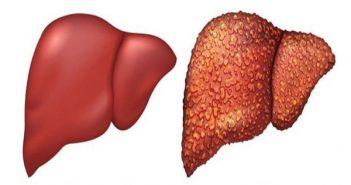 chế độ ăn cho người bị gan nhiễm mỡ độ 1