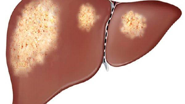 điều trị gan nhiễm mỡ cấp độ 1