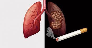Hút thuốc lá bao lâu thì bị ung thư phổi?