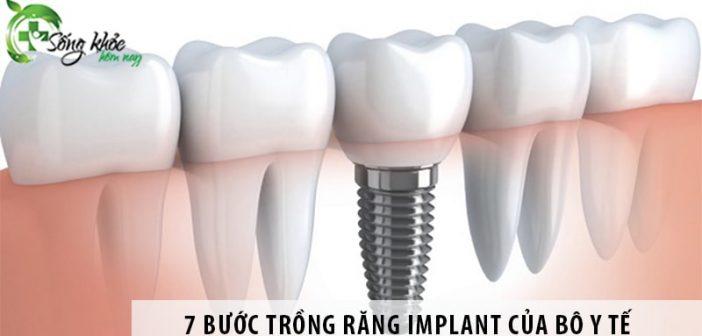 7 bước trồng răng Implant đúng tiêu chuẩn của Bộ Y Tế