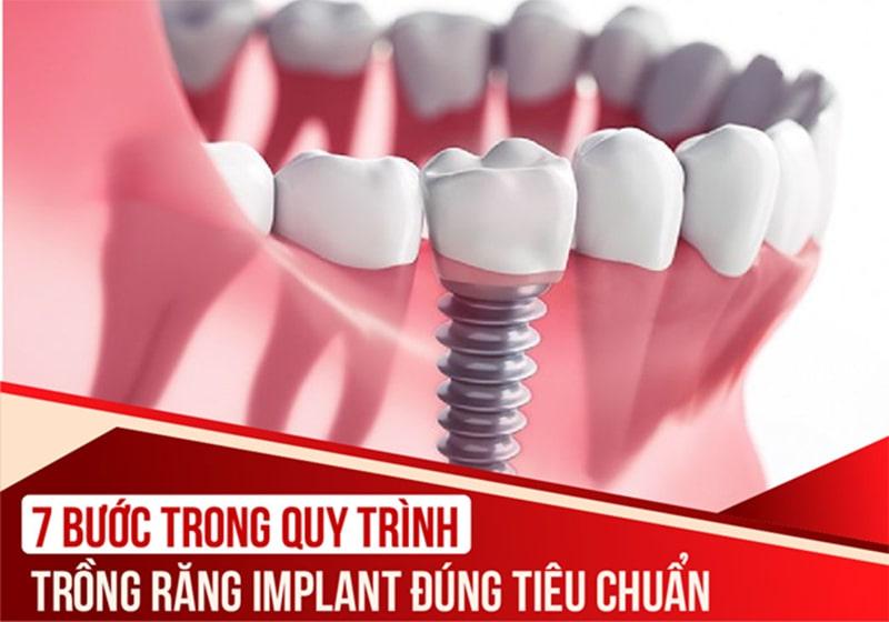 Quy trình trồng răng Implant đúng tiêu chuẩn