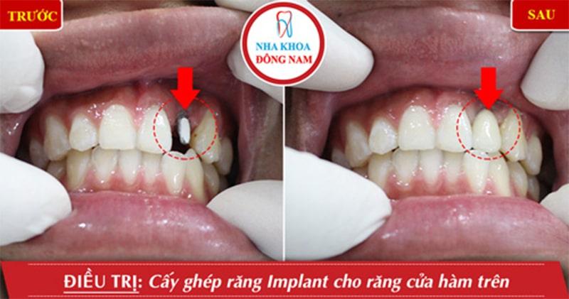 7 bước trồng răng Implant đúng tiêu chuẩn của Bộ Y Tế 1