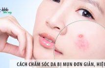 Hướng cách chăm sóc da bị mụn đơn giản, hiệu quả