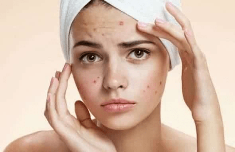 Có rất nhiều nguyên nhân khiến làn da của bạn nổi mụn