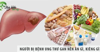 Người bị bệnh ung thư gan nên ăn gì, kiêng gì?